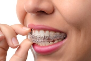 invisalign mouth piece